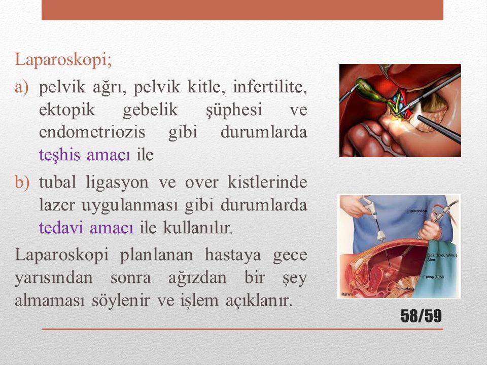 Laparoskopi; pelvik ağrı, pelvik kitle, infertilite, ektopik gebelik şüphesi ve endometriozis gibi durumlarda teşhis amacı ile.