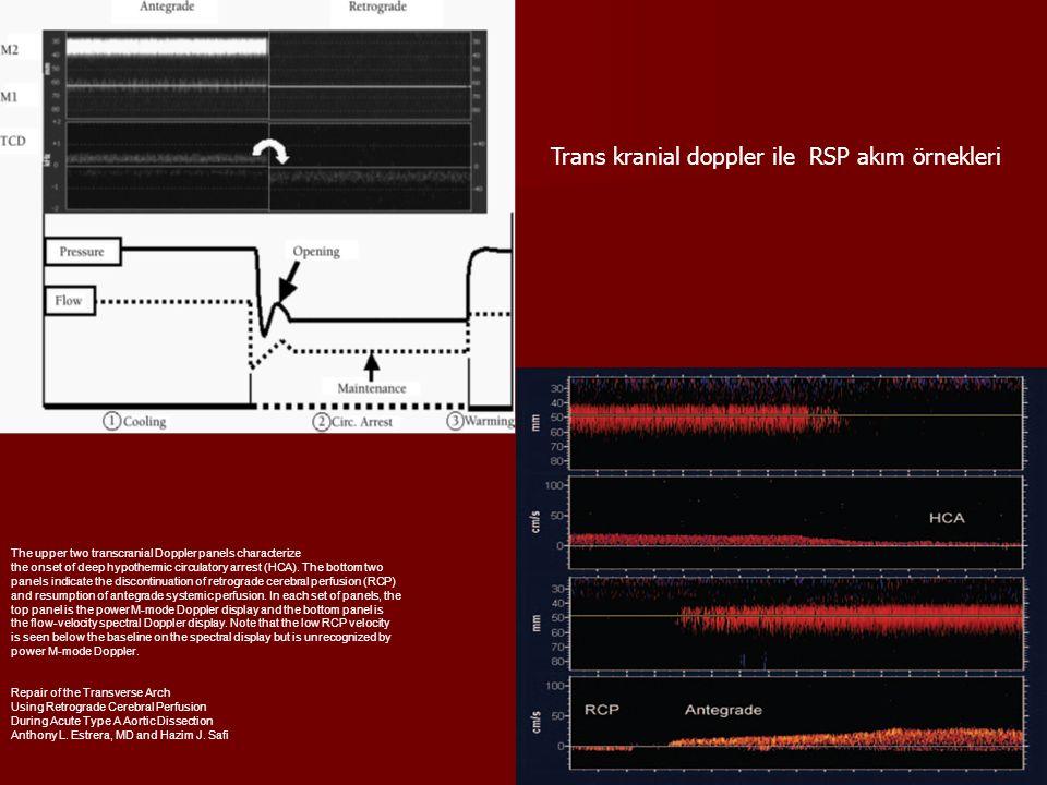 Trans kranial doppler ile RSP akım örnekleri