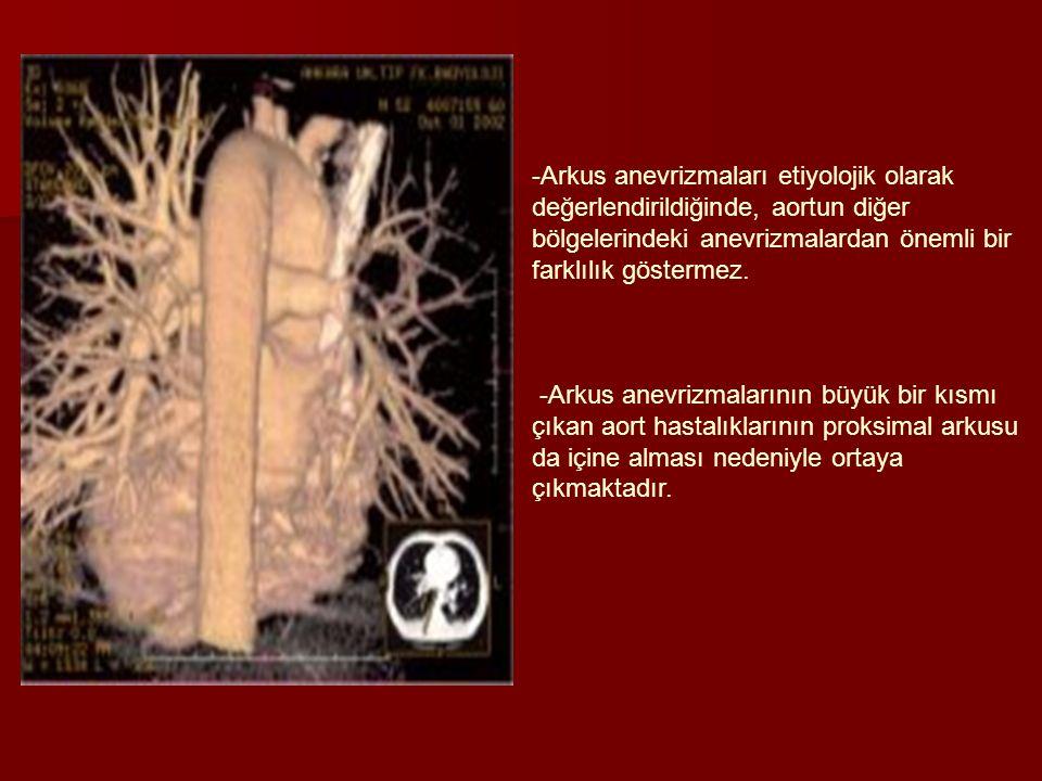 Arkus anevrizmaları etiyolojik olarak değerlendirildiğinde, aortun diğer bölgelerindeki anevrizmalardan önemli bir farklılık göstermez.