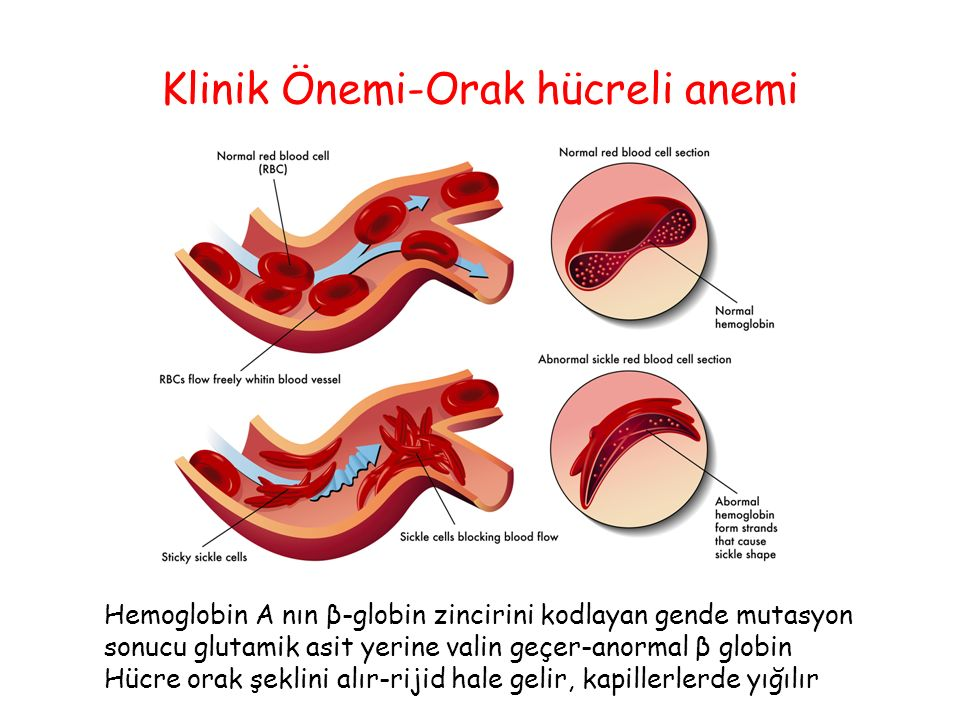 Klinik Önemi-Orak hücreli anemi
