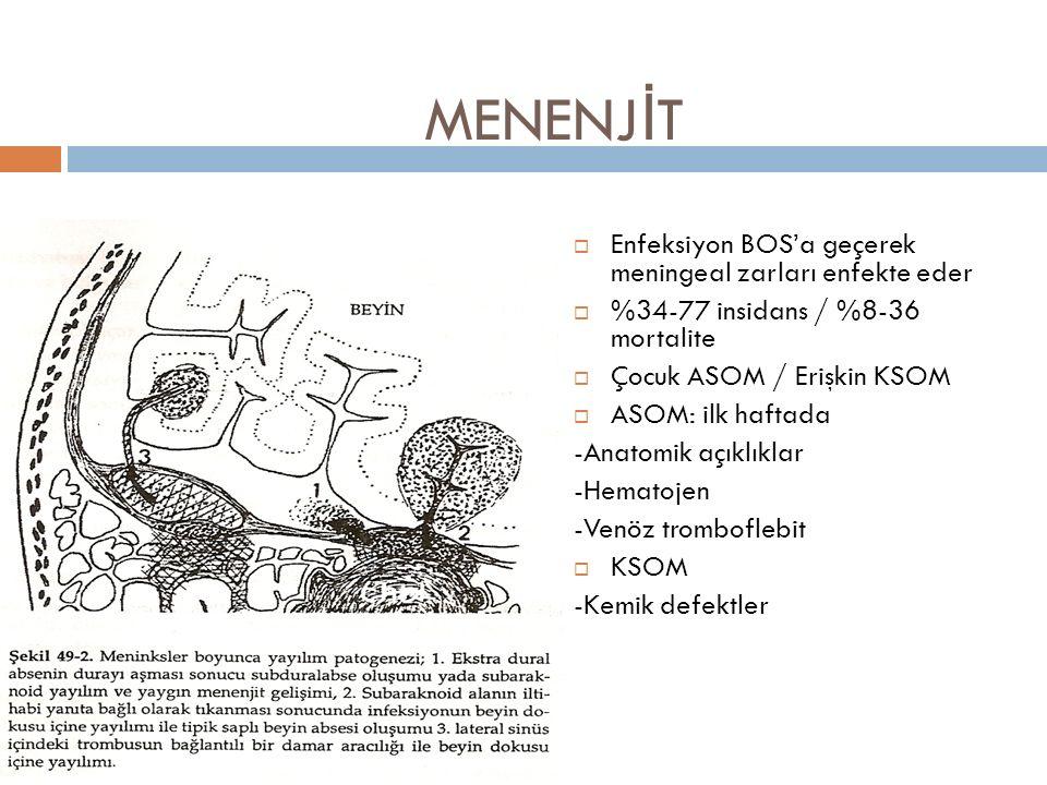 MENENJİT Enfeksiyon BOS'a geçerek meningeal zarları enfekte eder