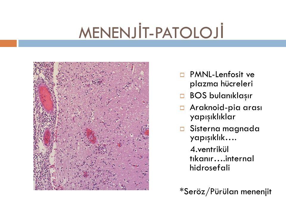 MENENJİT-PATOLOJİ PMNL-Lenfosit ve plazma hücreleri BOS bulanıklaşır