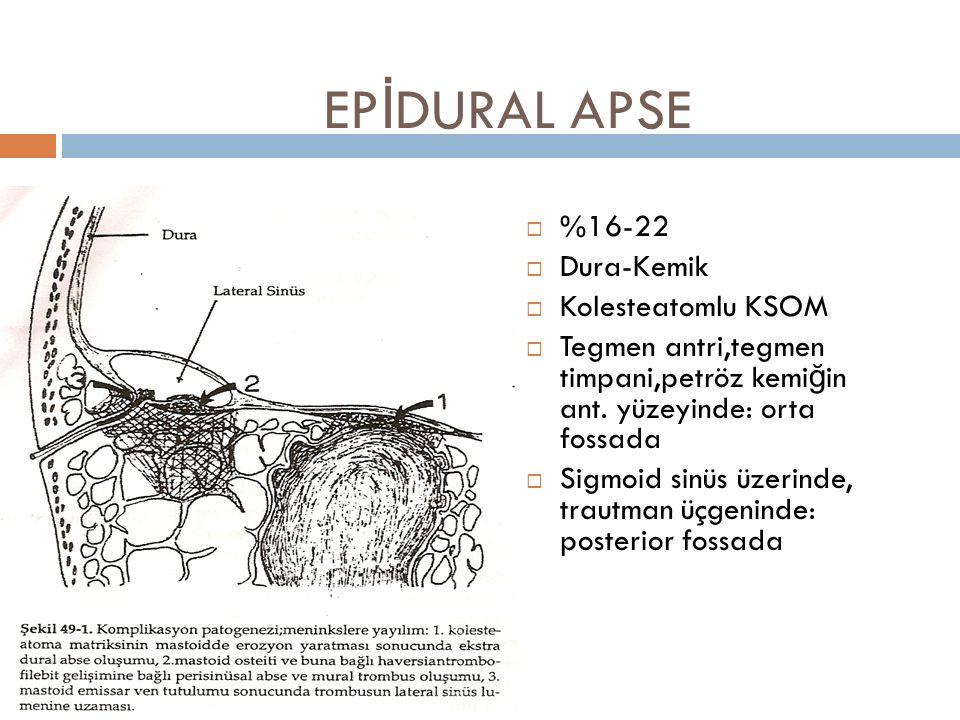 EPİDURAL APSE %16-22 Dura-Kemik Kolesteatomlu KSOM