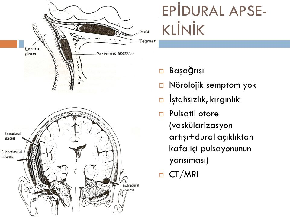 EPİDURAL APSE-KLİNİK Başağrısı Nörolojik semptom yok