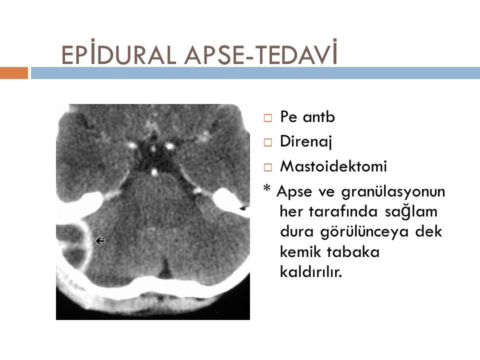 EPİDURAL APSE-TEDAVİ Pe antb Direnaj Mastoidektomi