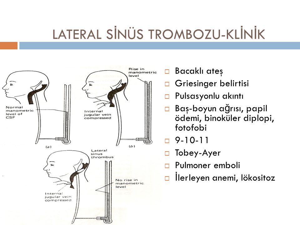 LATERAL SİNÜS TROMBOZU-KLİNİK