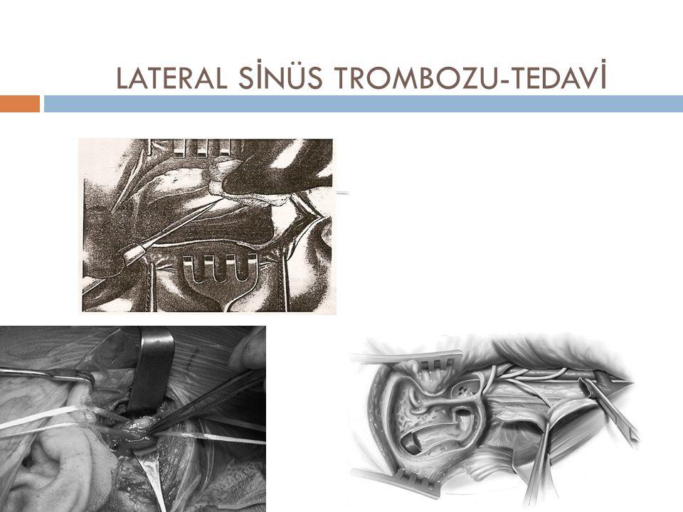 LATERAL SİNÜS TROMBOZU-TEDAVİ