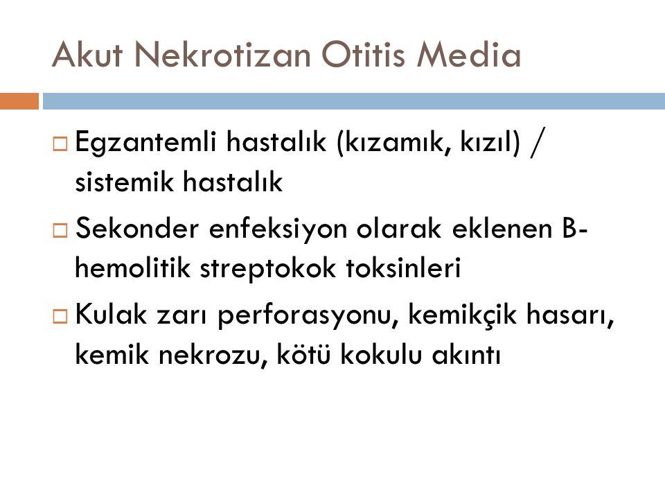 Akut Nekrotizan Otitis Media