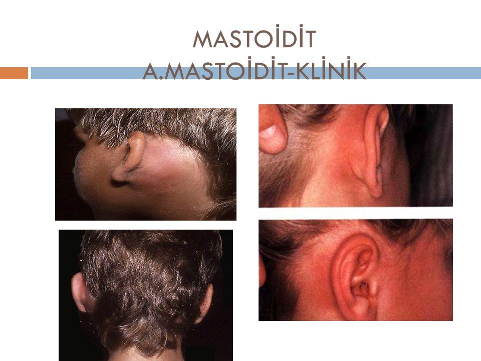 MASTOİDİT A.MASTOİDİT-KLİNİK