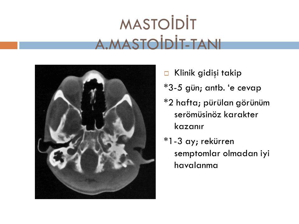 MASTOİDİT A.MASTOİDİT-TANI