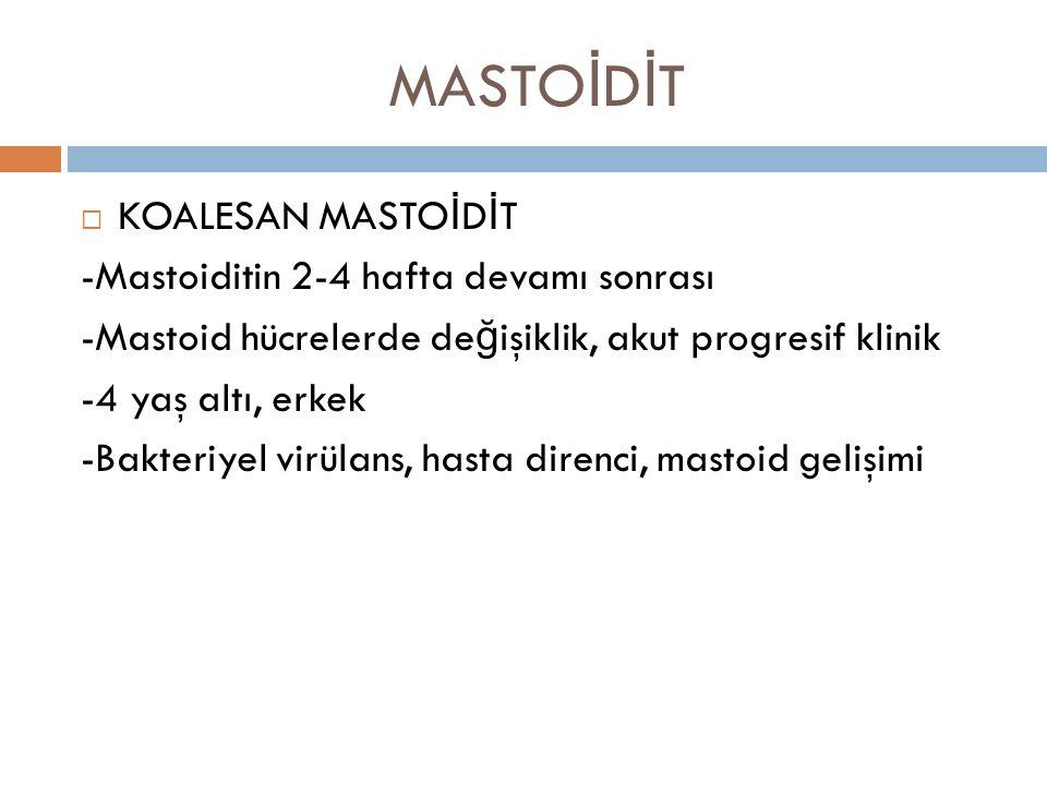 MASTOİDİT KOALESAN MASTOİDİT -Mastoiditin 2-4 hafta devamı sonrası