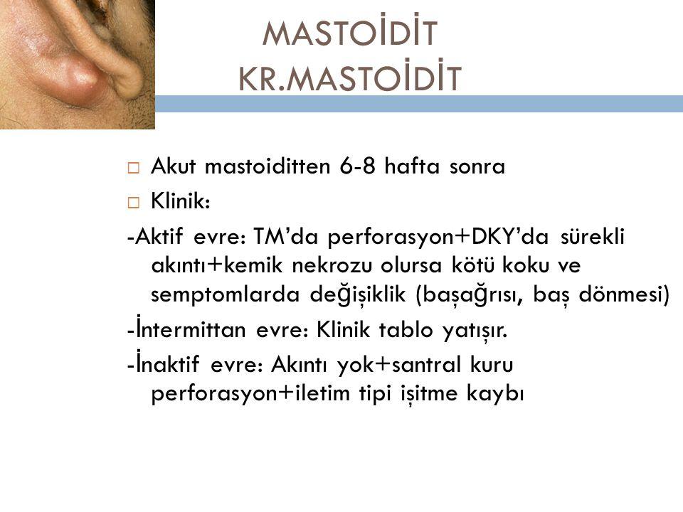 MASTOİDİT KR.MASTOİDİT