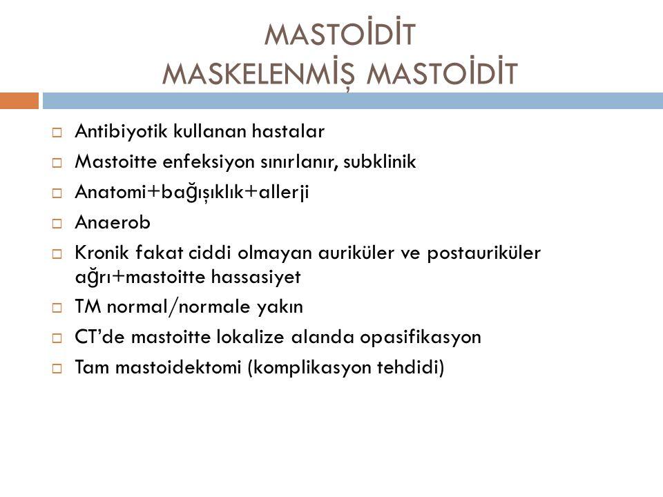 MASTOİDİT MASKELENMİŞ MASTOİDİT