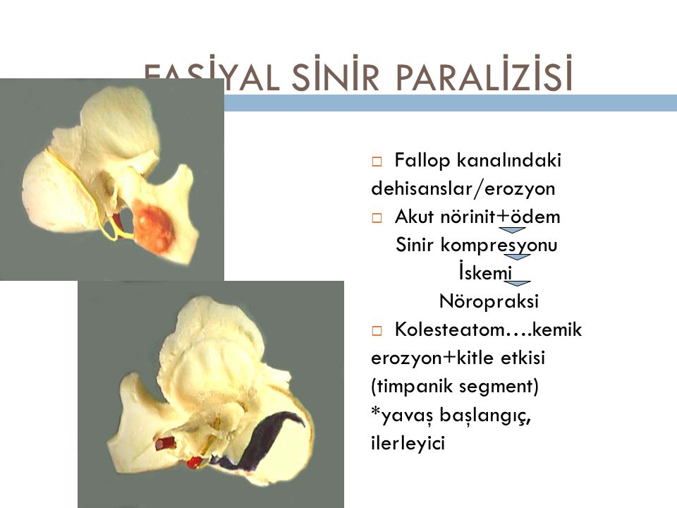 FASİYAL SİNİR PARALİZİSİ