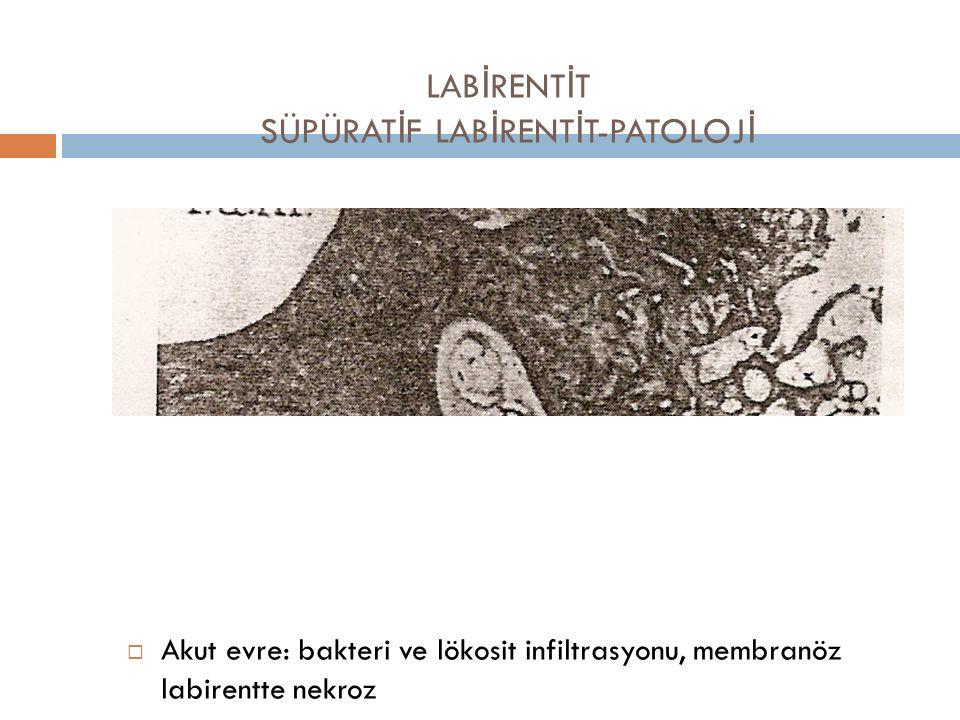LABİRENTİT SÜPÜRATİF LABİRENTİT-PATOLOJİ