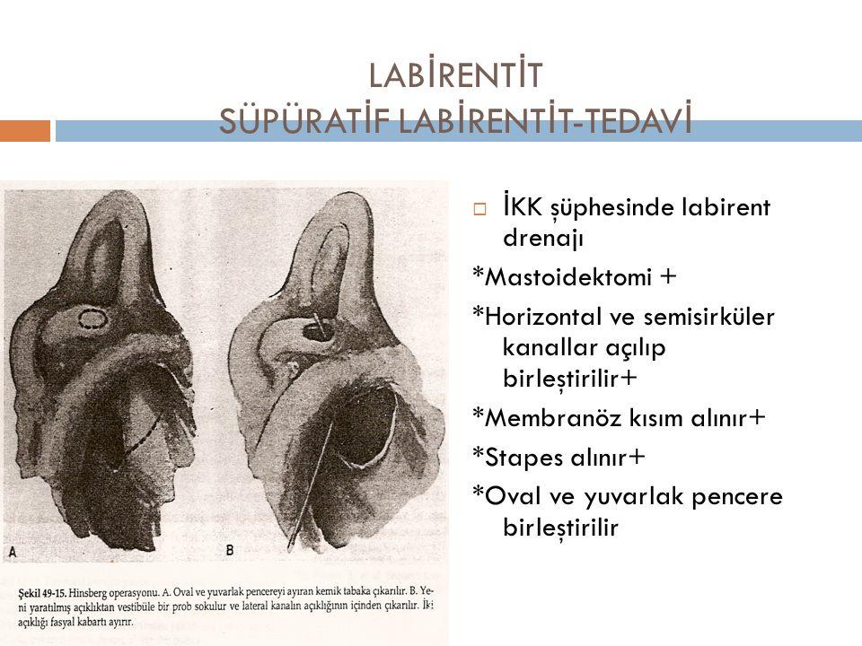 LABİRENTİT SÜPÜRATİF LABİRENTİT-TEDAVİ
