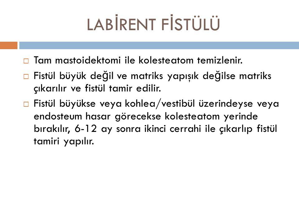 LABİRENT FİSTÜLÜ Tam mastoidektomi ile kolesteatom temizlenir.