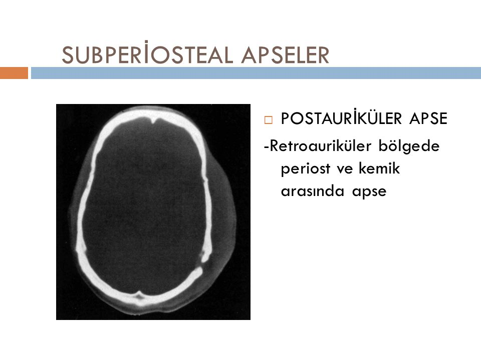 SUBPERİOSTEAL APSELER