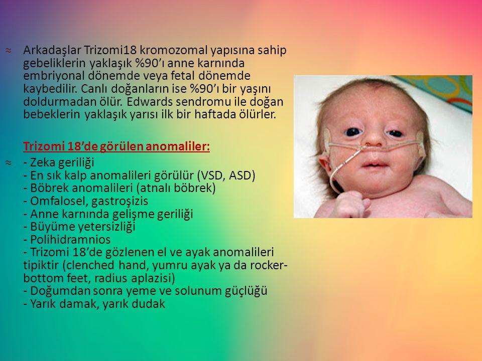 Arkadaşlar Trizomi18 kromozomal yapısına sahip gebeliklerin yaklaşık %90'ı anne karnında embriyonal dönemde veya fetal dönemde kaybedilir. Canlı doğanların ise %90'ı bir yaşını doldurmadan ölür. Edwards sendromu ile doğan bebeklerin yaklaşık yarısı ilk bir haftada ölürler.