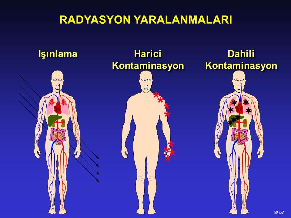 RADYASYON YARALANMALARI