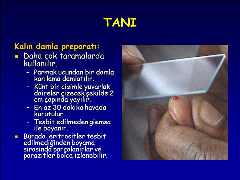 TANI Kalın damla preparatı: Daha çok taramalarda kullanılır.