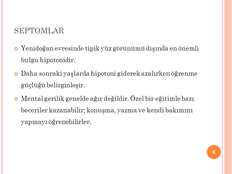 SEPTOMLAR Yenidoğan evresinde tipik yüz görünümü dışında en önemli bulgu hipotonidir.