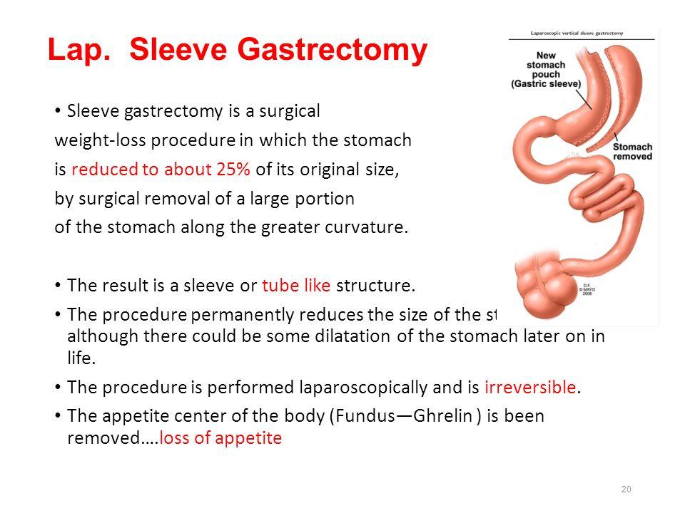 Lap. Sleeve Gastrectomy