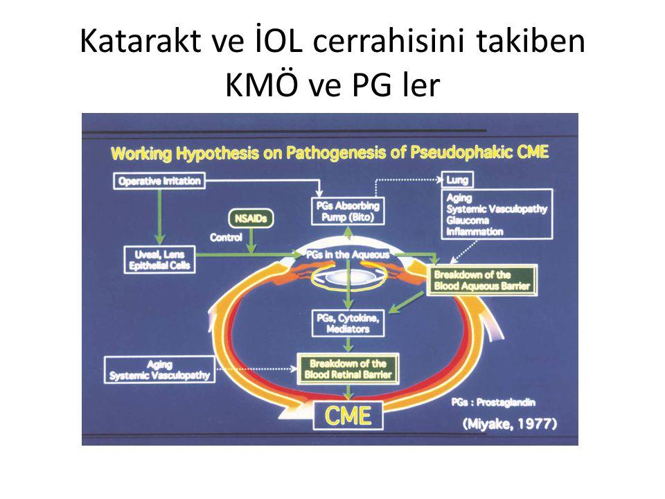 Katarakt ve İOL cerrahisini takiben KMÖ ve PG ler