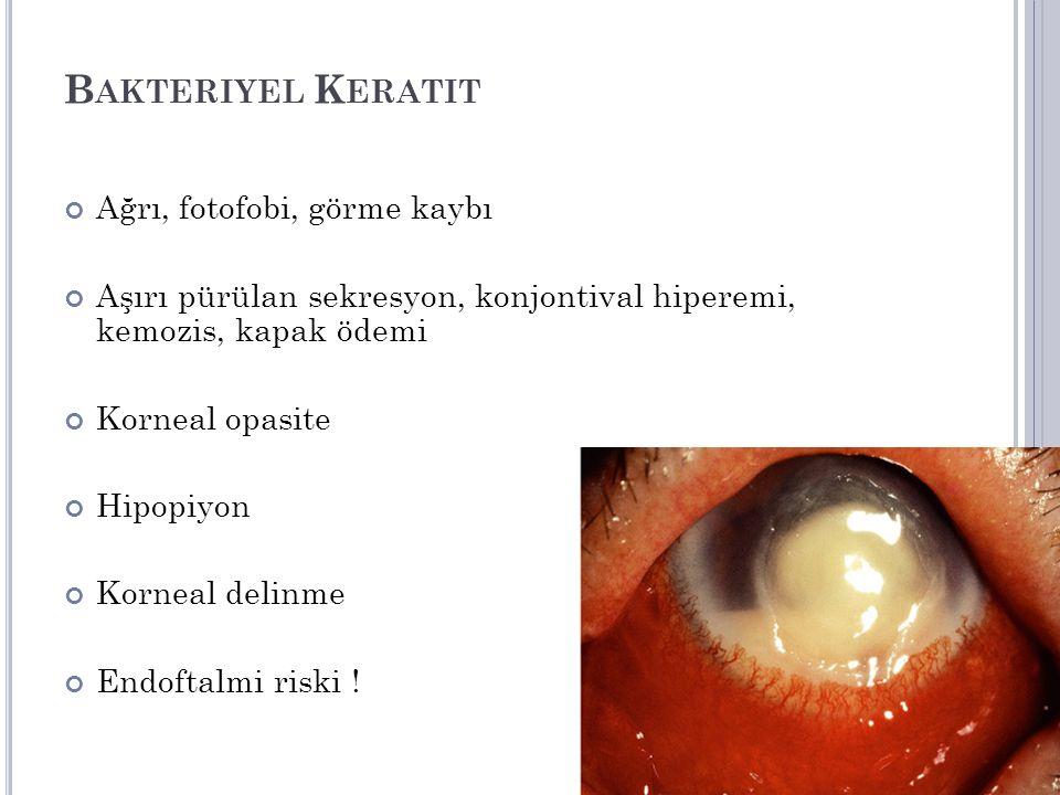 Bakteriyel Keratit Ağrı, fotofobi, görme kaybı