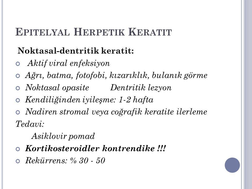 Epitelyal Herpetik Keratit
