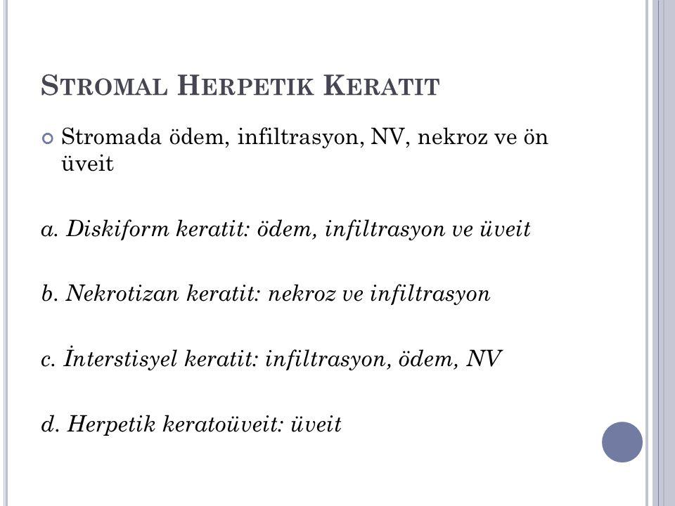 Stromal Herpetik Keratit