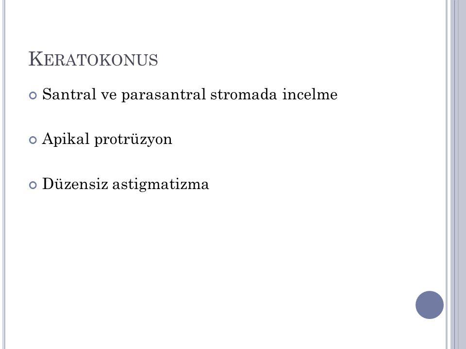 Keratokonus Santral ve parasantral stromada incelme Apikal protrüzyon