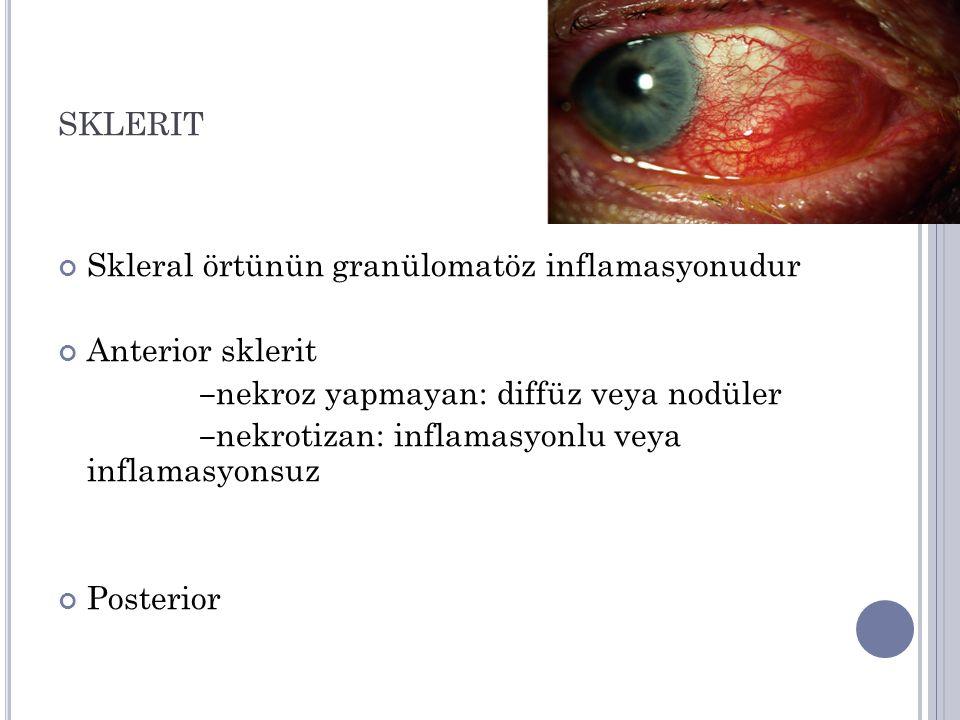 sklerit Skleral örtünün granülomatöz inflamasyonudur Anterior sklerit