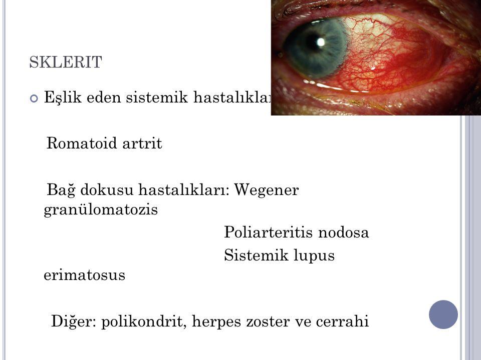 sklerit Eşlik eden sistemik hastalıklar Romatoid artrit
