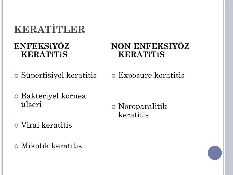 KERATİTLER ENFEKSiYÖZ KERATiTiS Süperfisiyel keratitis
