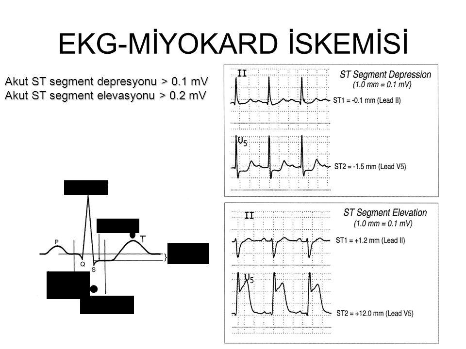 EKG-MİYOKARD İSKEMİSİ