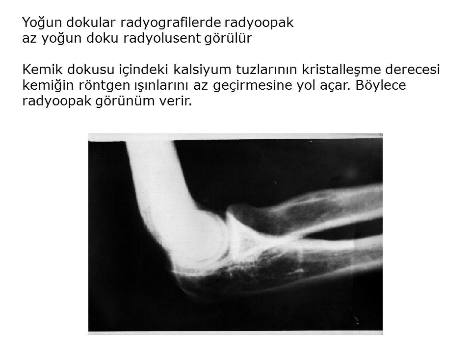 Yoğun dokular radyografilerde radyoopak