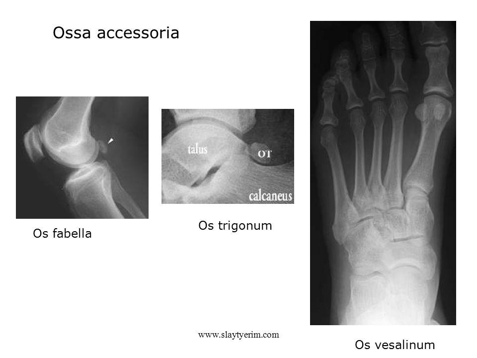 Ossa accessoria Os trigonum Os fabella www.slaytyerim.com Os vesalinum