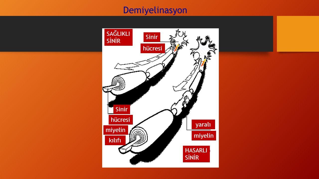 Demiyelinasyon SAĞLIKLI SİNİR Sinir hücresi Sinir hücresi yaralı