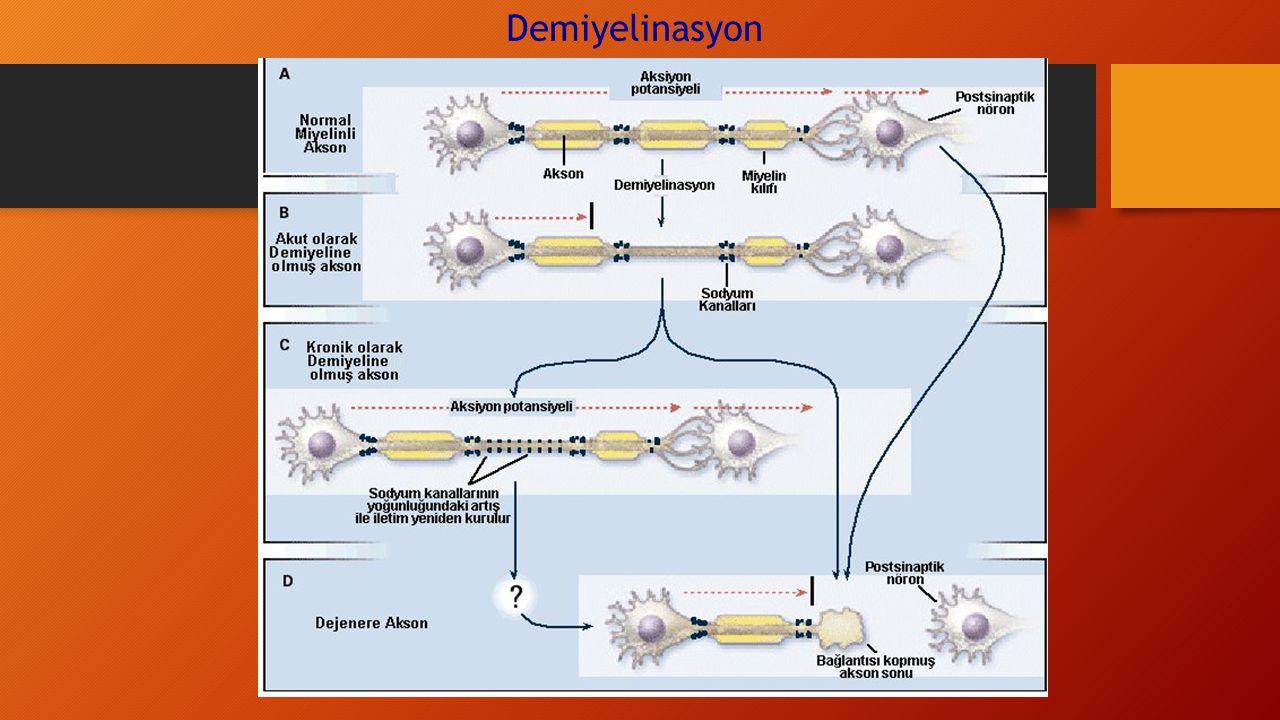 Demiyelinasyon