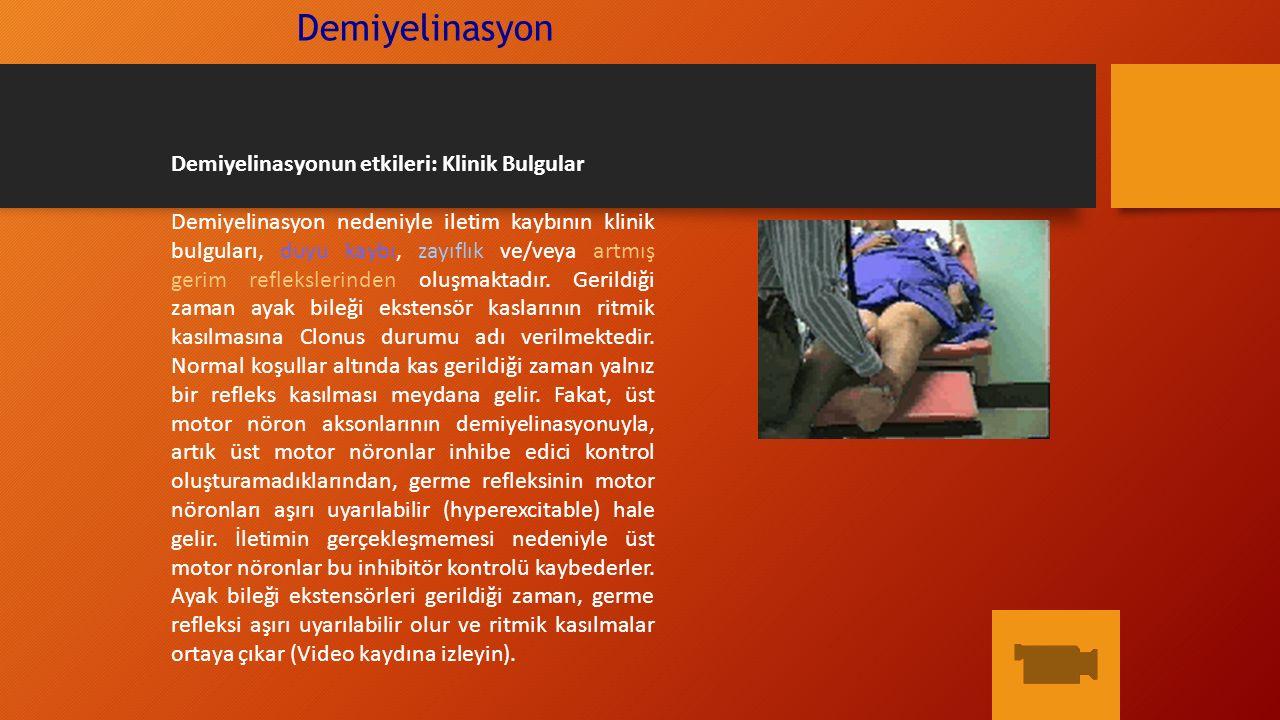 Demiyelinasyon Demiyelinasyonun etkileri: Klinik Bulgular