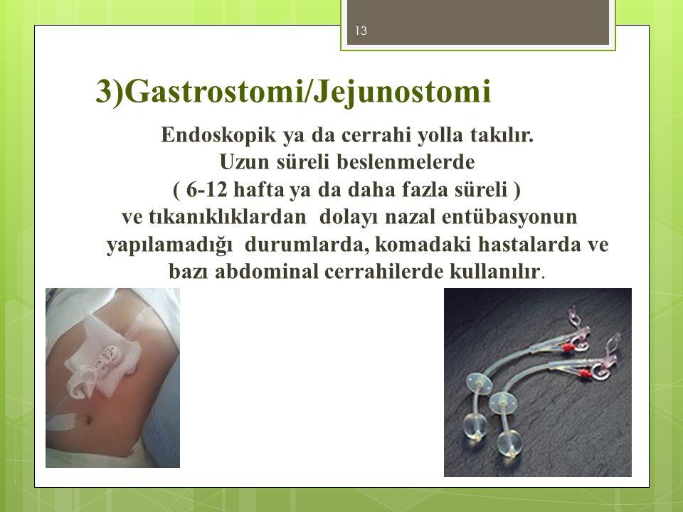 3)Gastrostomi/Jejunostomi