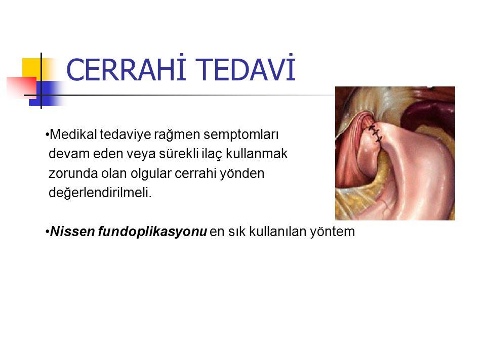 CERRAHİ TEDAVİ Medikal tedaviye rağmen semptomları