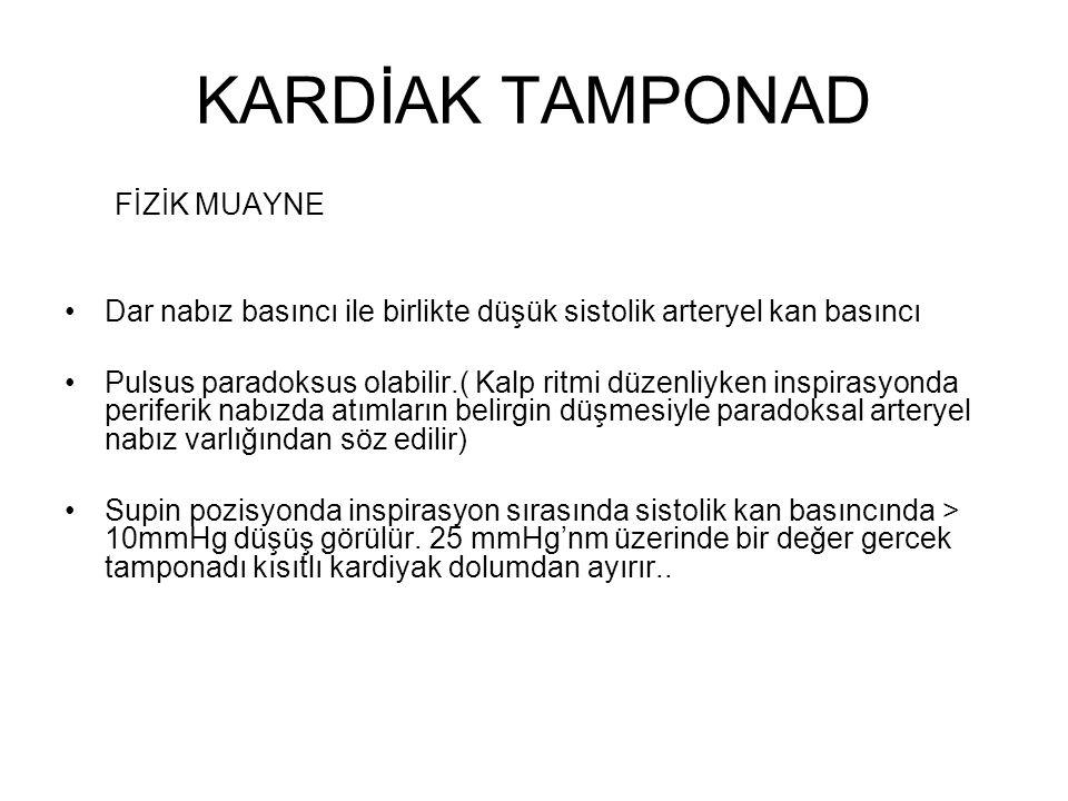 KARDİAK TAMPONAD FİZİK MUAYNE