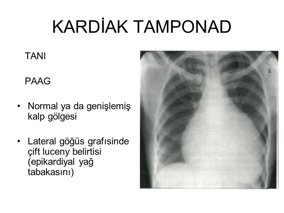 KARDİAK TAMPONAD TANI PAAG Normal ya da genişlemiş kalp gölgesi