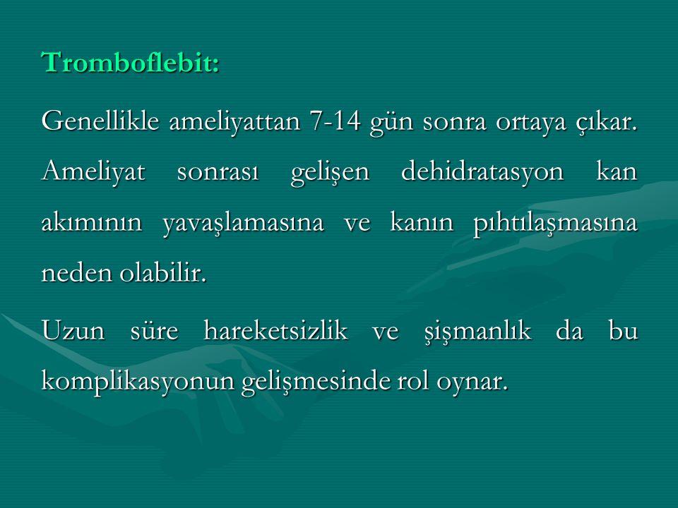 Tromboflebit: