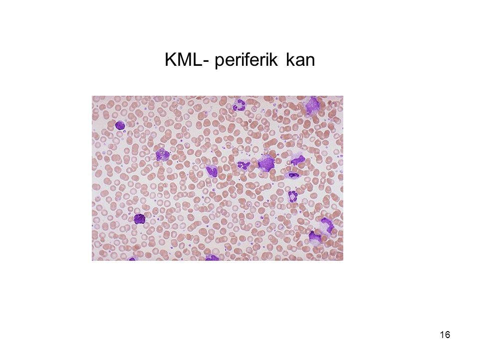 KML- periferik kan