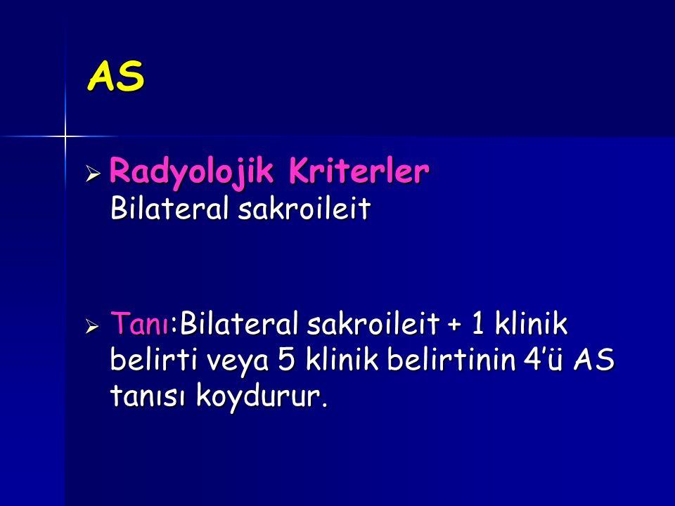 AS Radyolojik Kriterler Bilateral sakroileit