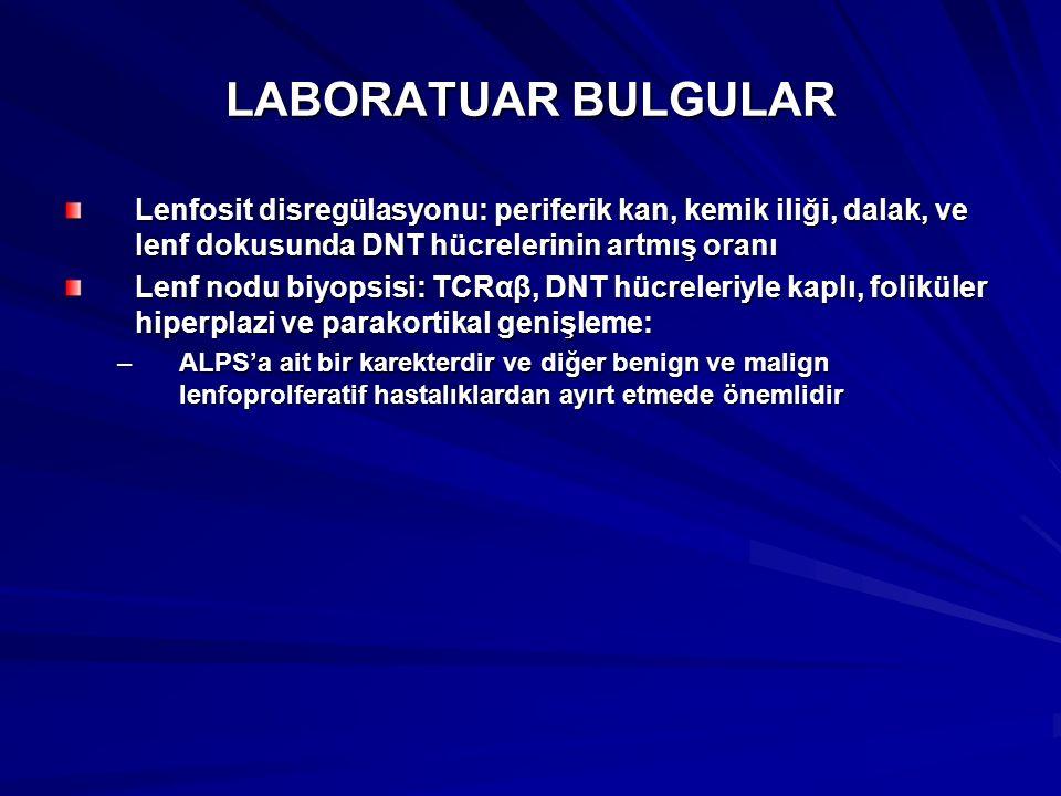 LABORATUAR BULGULAR Lenfosit disregülasyonu: periferik kan, kemik iliği, dalak, ve lenf dokusunda DNT hücrelerinin artmış oranı.