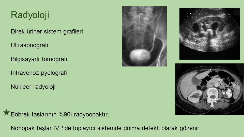 Radyoloji Direk üriner sistem grafileri Ultrasonografi